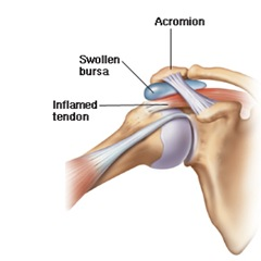 Strained Shoulder